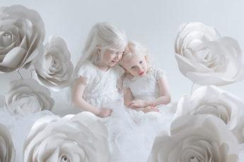 Красота людей альбиносов