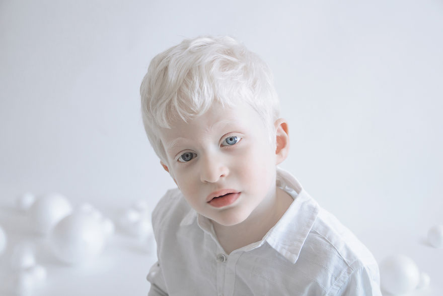 Ребенок альбинос
