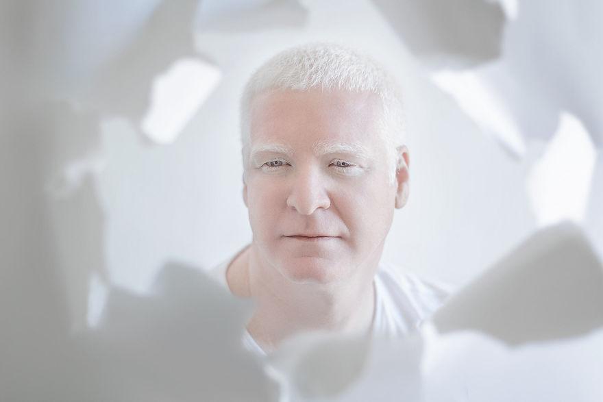 Мужчина альбинос