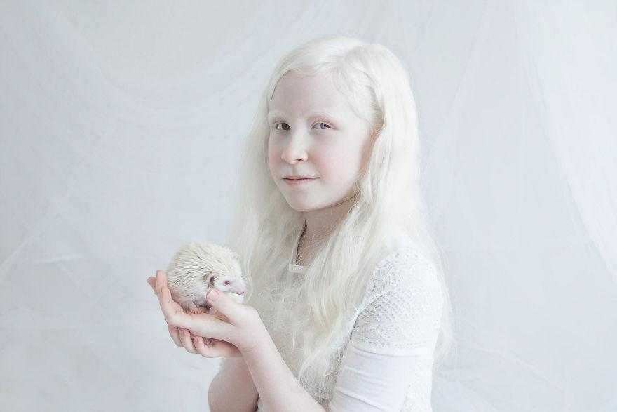 Девочка с белыми волосами