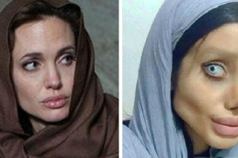 Она сделала 50 операций, чтобы стать похожей на Анджелину Джоли