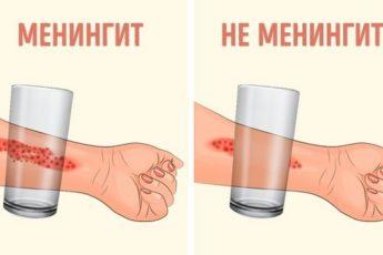 8 признаков менингита у ребенка