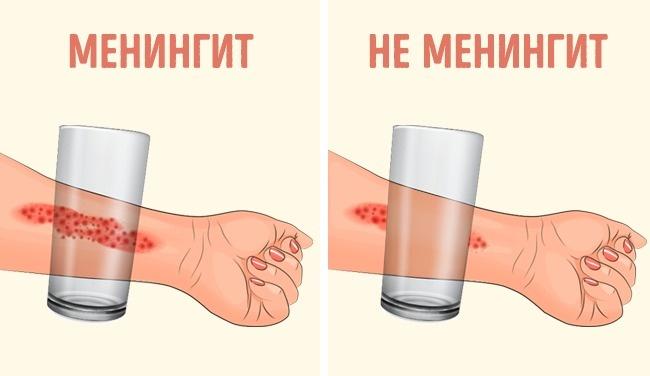 8-priznakov-meningita-u-rebenka-8