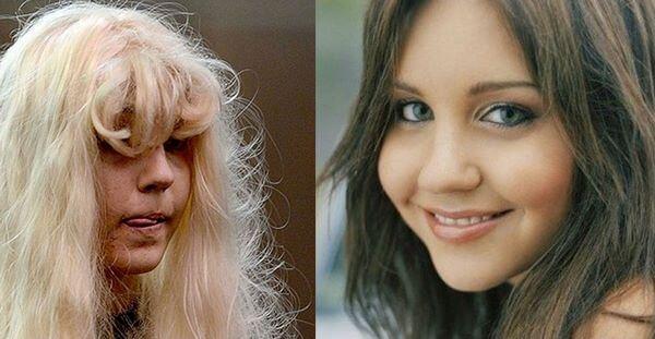 Восемь юных знаменитостей, которые повзрослев стали выглядеть ужасно