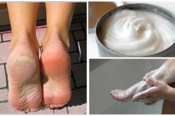 Домашнее средство для устранения мозолей и грибков с ног
